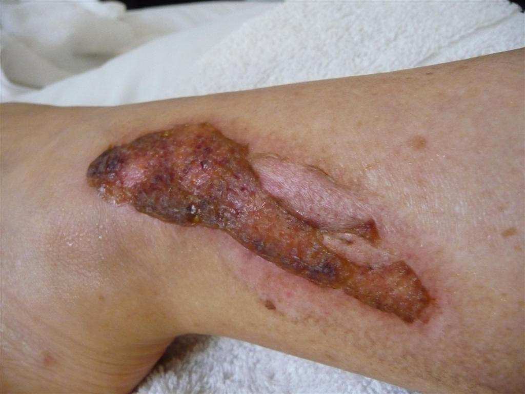 Recovering from exhaust burns