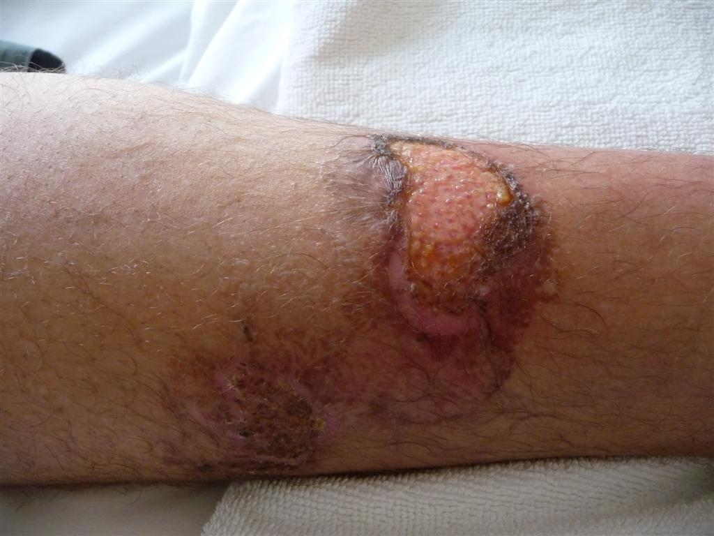 Recovering from second  degree exhaust burns