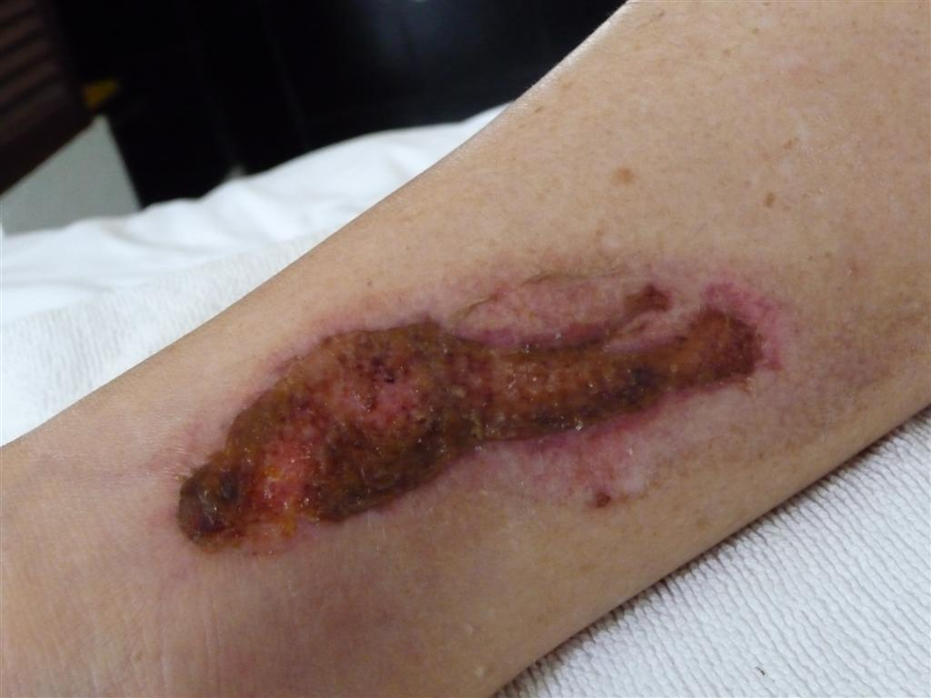 Healing from second degree burns