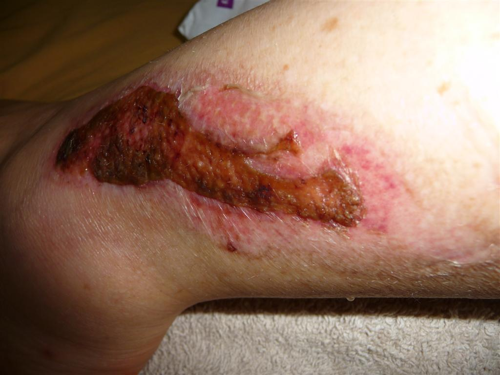 Healing process of second degree burns