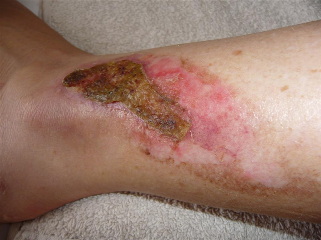 Recovering from second degree burns
