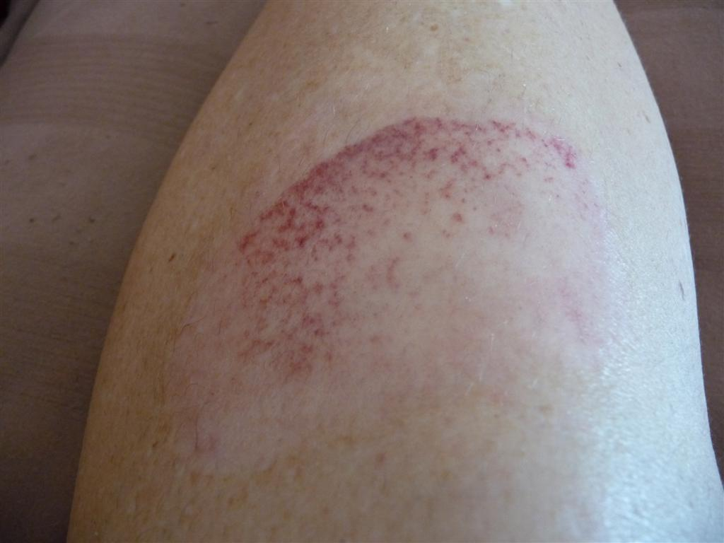 Recovery from second degree burns