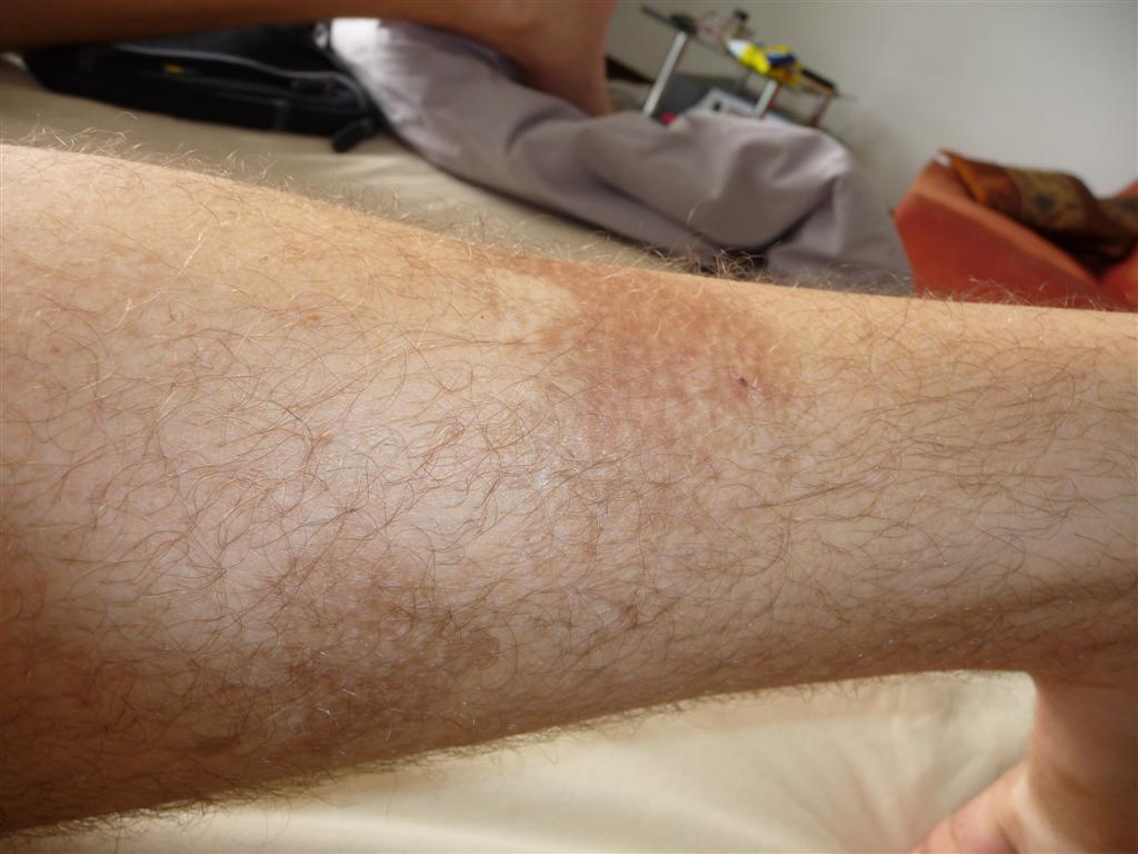 Healing second degree burns